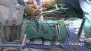 Surgical table with operation in background 26441