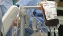 IV bag of anticoagulant during surgery 26442