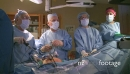Surgical team performing laparoscopic procedure (6 of 7) 27306