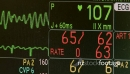 Vital signs monitor during surgery 27323